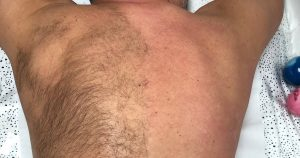 Back Waxing for men: is it worth it?